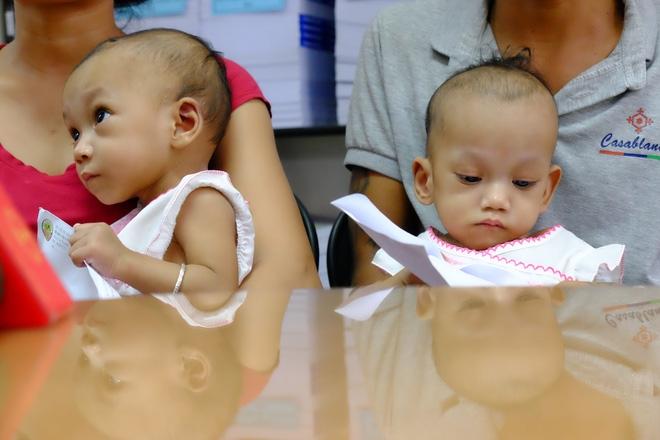 cặp sinh đôi dính liền vùng cùng cụt, cặp song sinh dính liền ở Việt Nam, phẫu thuật thành công cặp song sinh dính liền