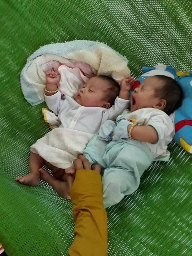 Thụ tinh nhân tạo 2 con song sinh mẹ bị ung thư, người mẹ bị ung thư