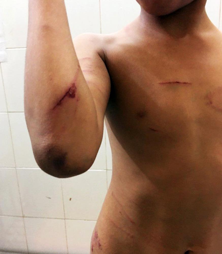 bạo hành trẻ em, cha ruột xót xa khi con trai bị cha dượng đánh