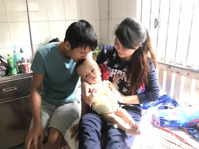 não úng thủy, bé trai sinh non trống trọi với bệnh não úng thủy